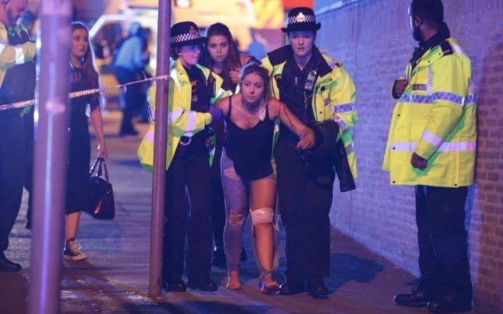 Herida después del ataque en el concierto de Ariadna Grande en Manchester